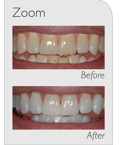 Zoom - Before After